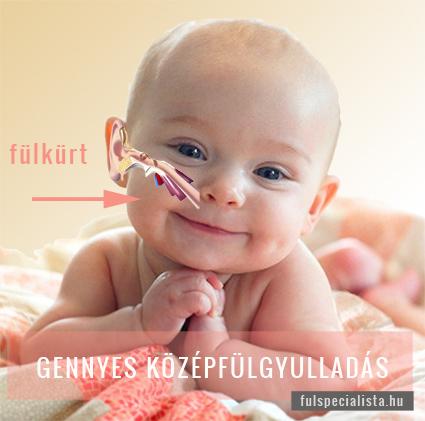 Fülgyulladás tünetei babáknál