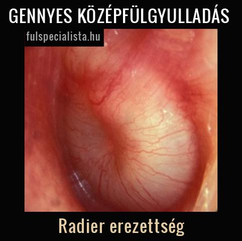 középfülgyulladás szövődményei látás
