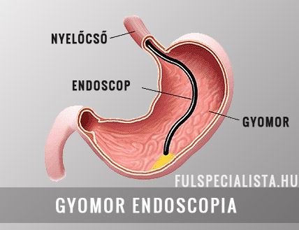 gyomor endoscopia