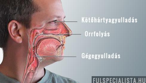 ízületi sinusitis kezelés kattanási ízületek kezelést okoznak