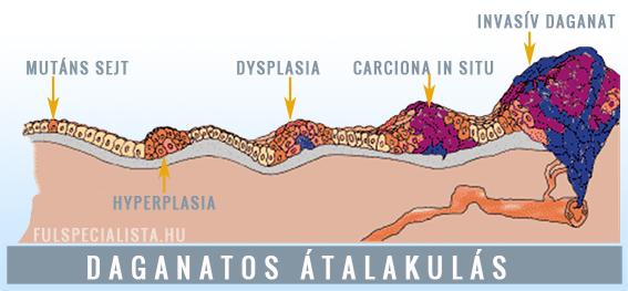 vastagbélrák a a neuroendokrin rák patológiája felvázolja