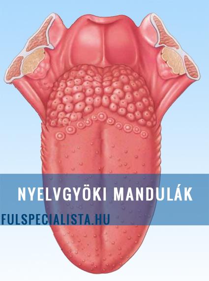 rák és mandulagyulladás intraductalis papilloma pikkelyes metapláziával
