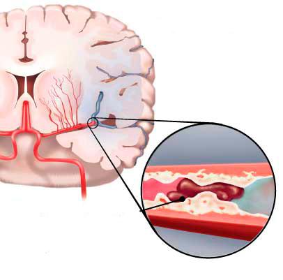 Fejfájás lehet a dohányzás miatt. Ez is okozhatja a fejfájást