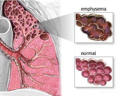 COPD tünetei és kezelése