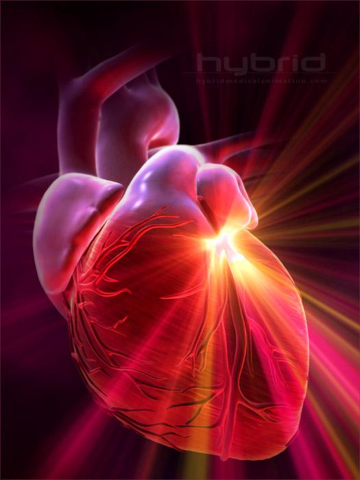szív keringési zavara szédülés fülzúgás