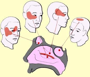 Maxillary sinusitis